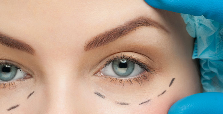 Plástica Ocular: o que é?
