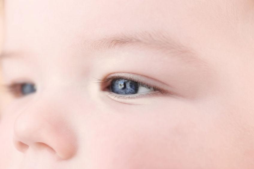 Catarata congênita: sintomas, causas e tratamentos