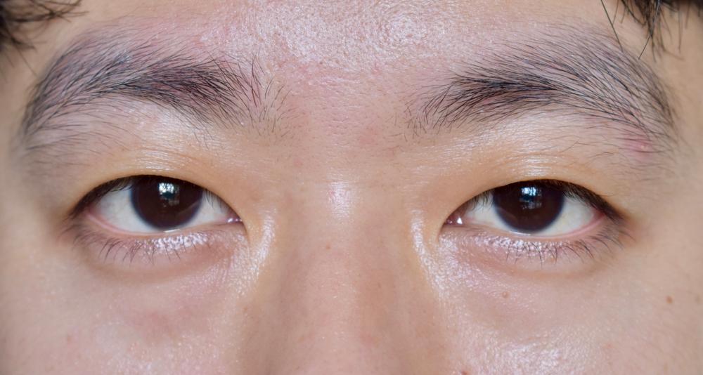 Saiba quais são as doenças das pálpebras e do aparelho lacrimal