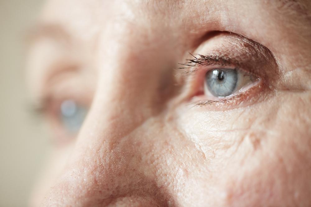 Arco senil: sintomas, causas e tratamentos