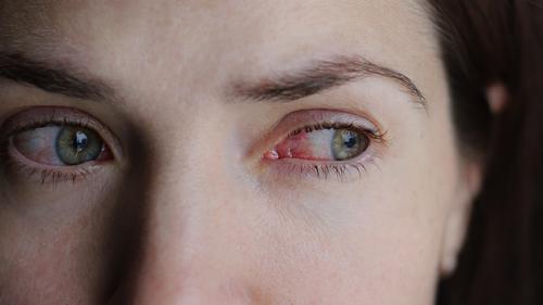 Conjuntivite: por que ocorre e quais os sintomas