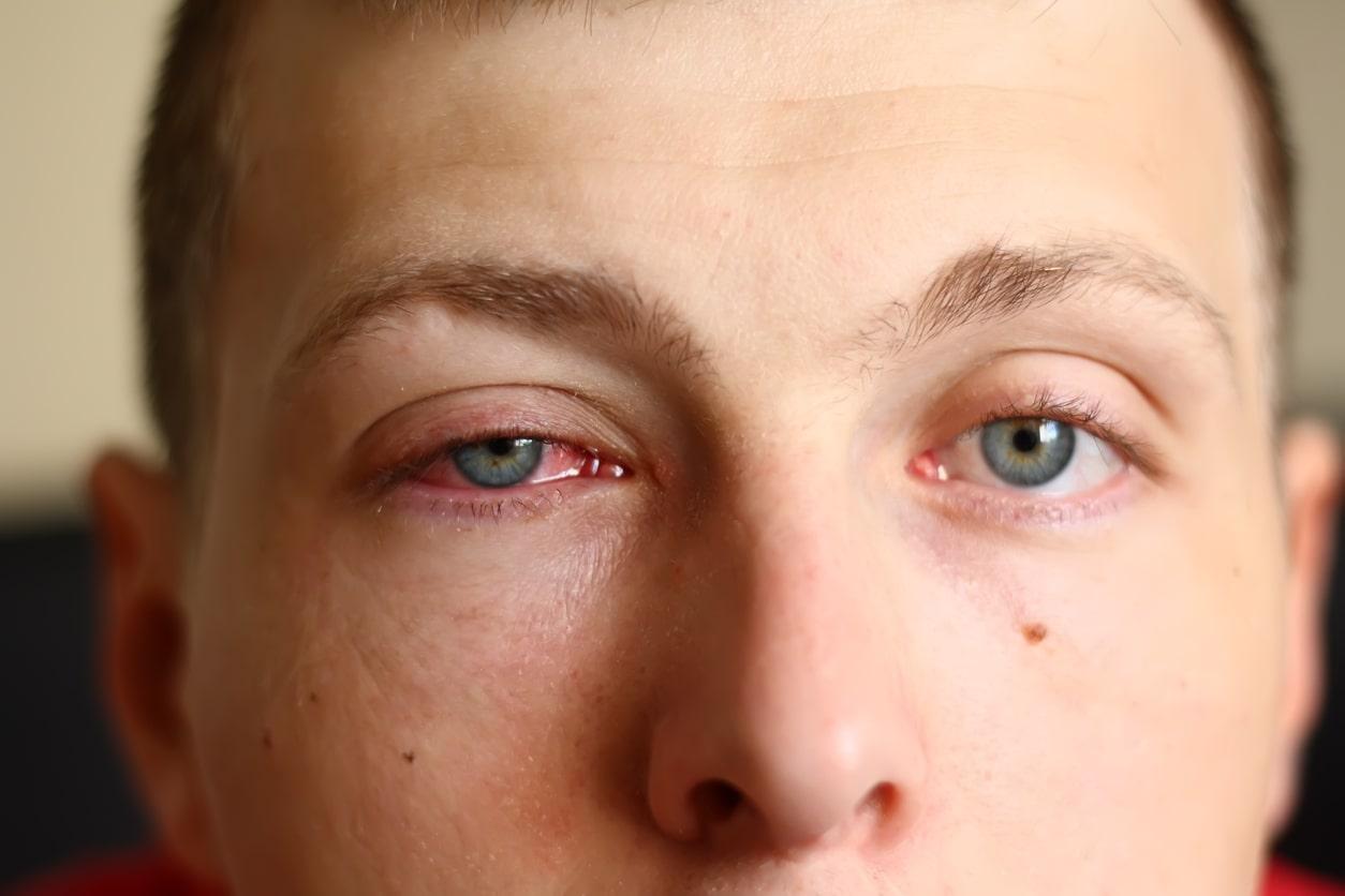 Conjuntivite: sintomas, causas e tratamentos