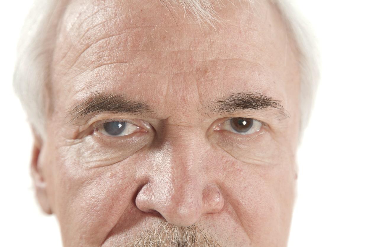 Tudo o que você precisa saber sobre glaucoma